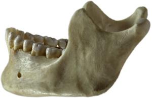 Human_jawbone_left